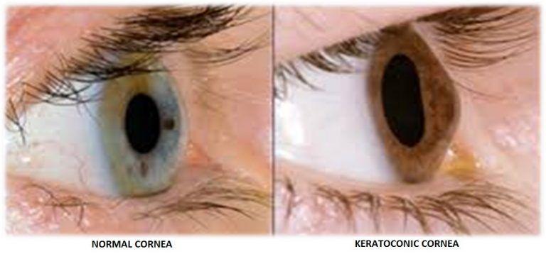 Keratoconus Eye Treatment - The Eye Foundation