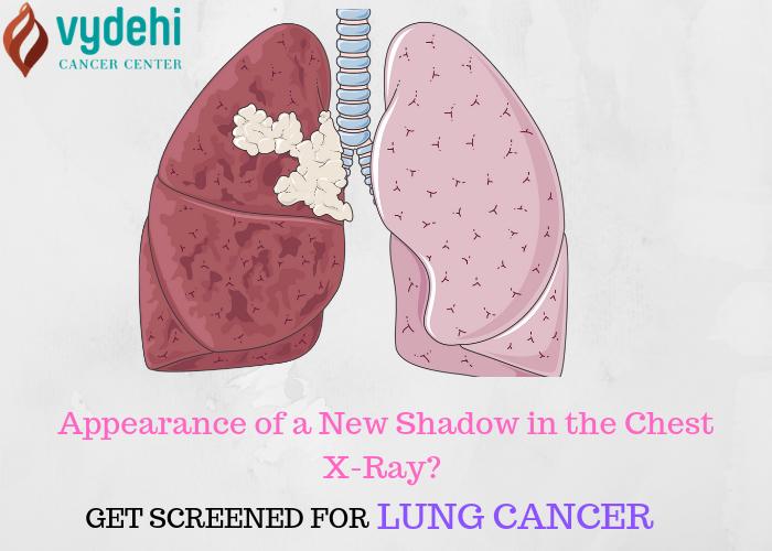 Lung Cancer Treatment at Vydehi Cancer Center
