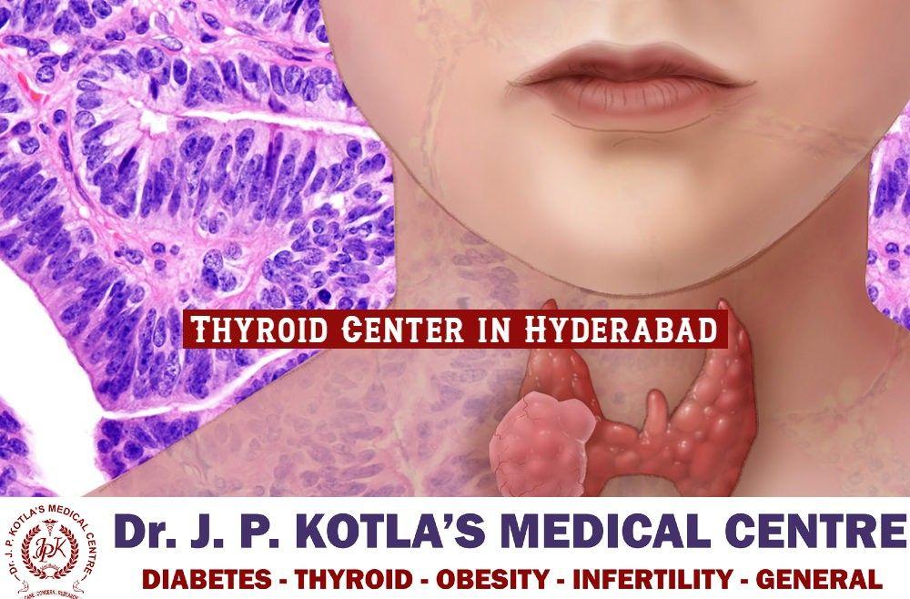 Best Thyroid Center in Hyderabad – Thyroid Center in Himayat Nagar