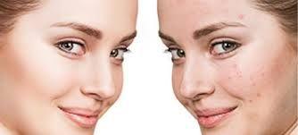 Best Dermatologist in Madinaguda | Skin Specialist Doctor in Hyderabad | Pimple Acne Treatment