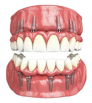 Best Dental Implant Dentist in Udaipur