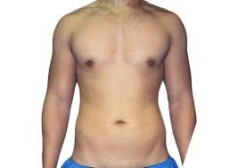 Liposuction in Houston, TX
