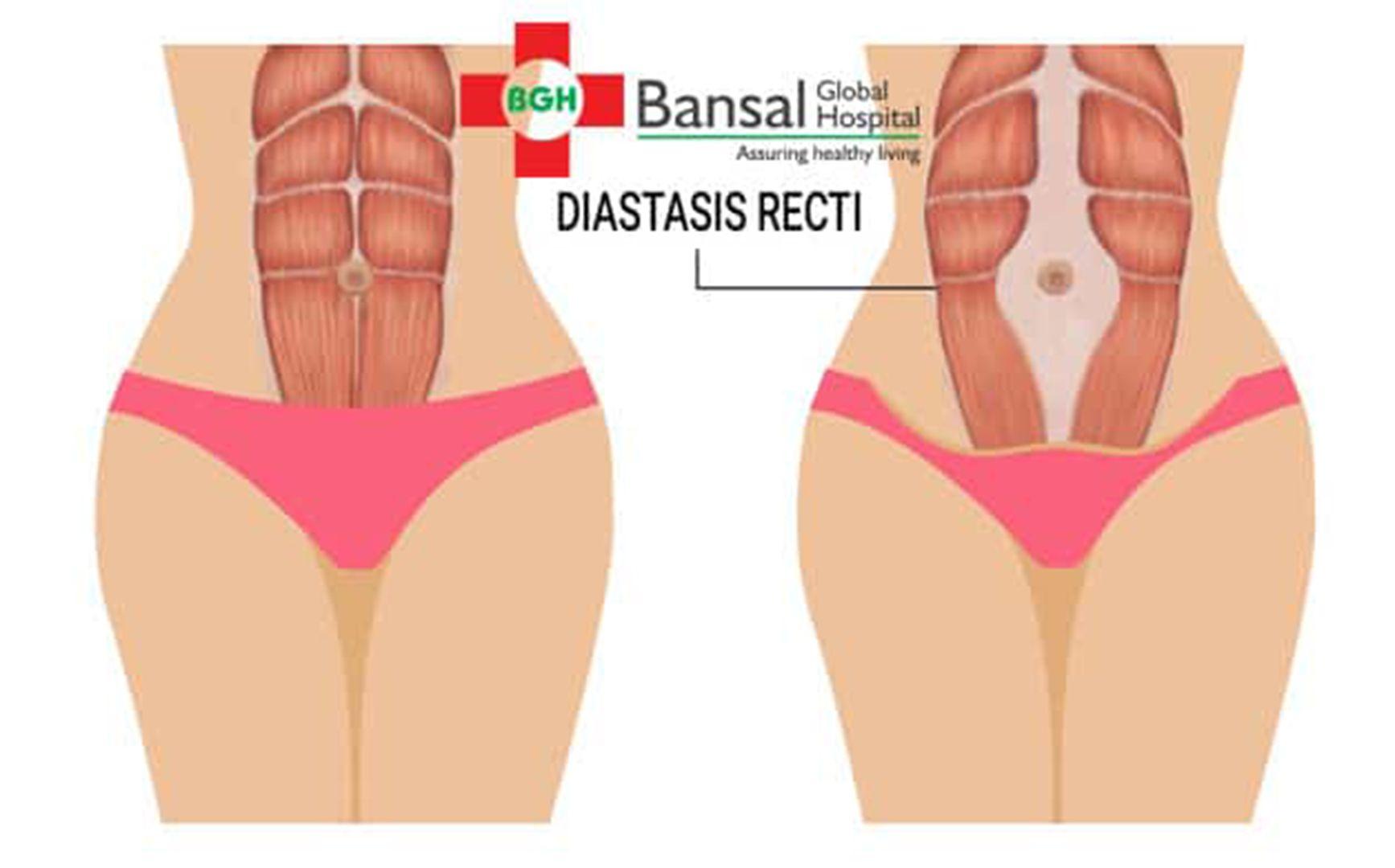 Diastasis Recti Treatment | Diastasis Recti Treatment in India