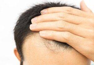 Cure Baldness with Hair loss Treatment in Delhi