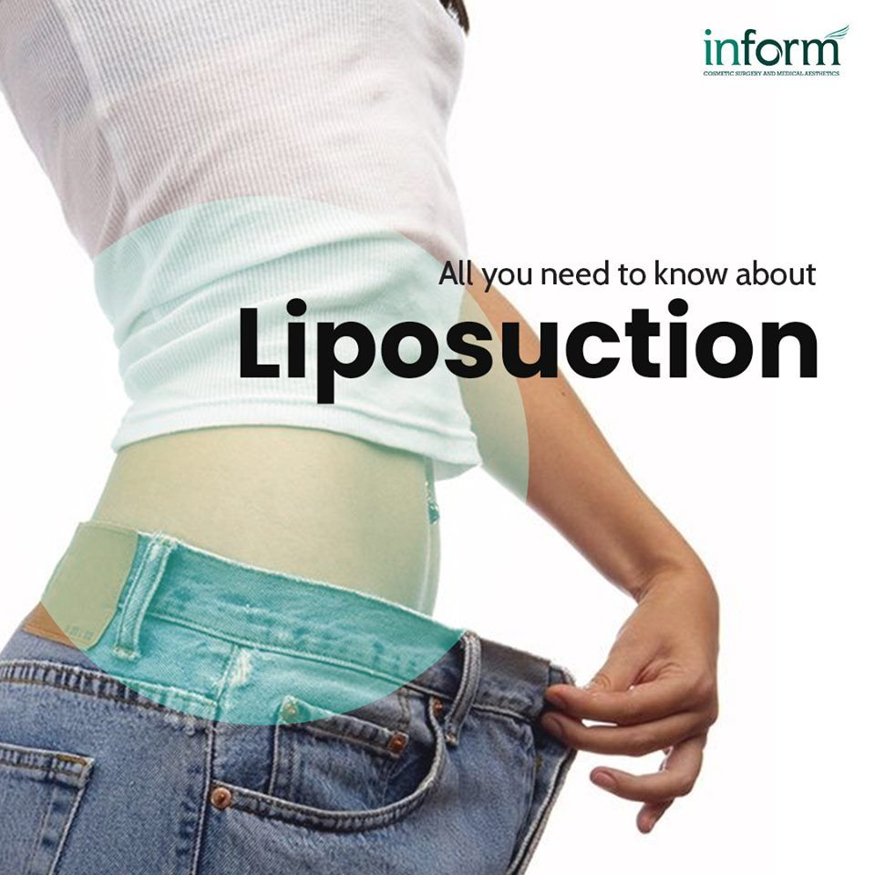 Liposuction Surgery in Hyderabad to Remove Unwanted Fat