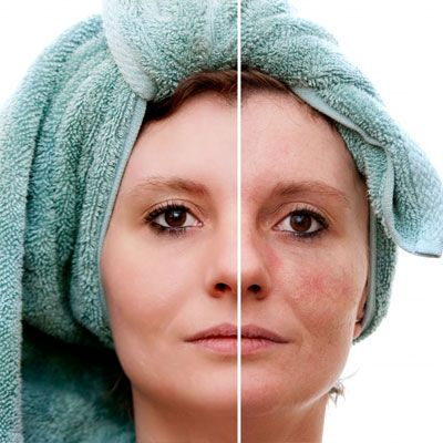 Skin Rejuvenation Abu Dhabi & Dubai - For A Younger Looking Skin