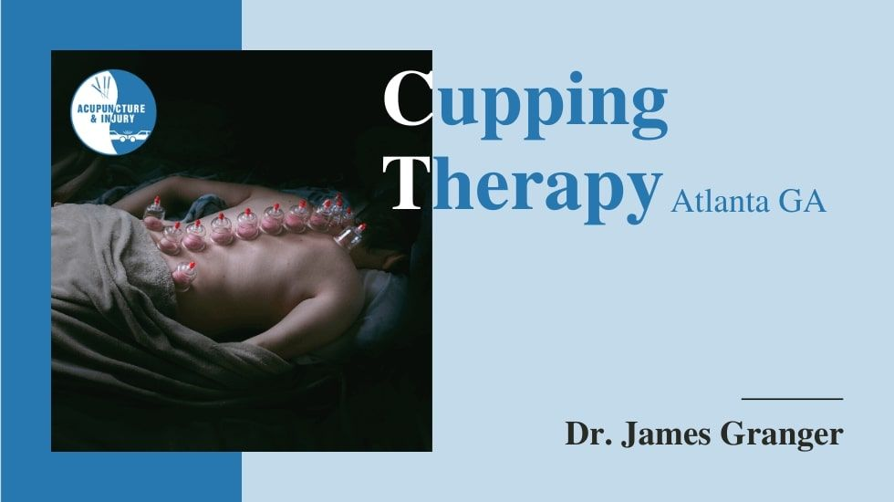 Best Cupping Therapy Atlanta GA