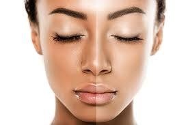 Best Skin Whitening Treatment in Himayat Nagar, Hyderabad