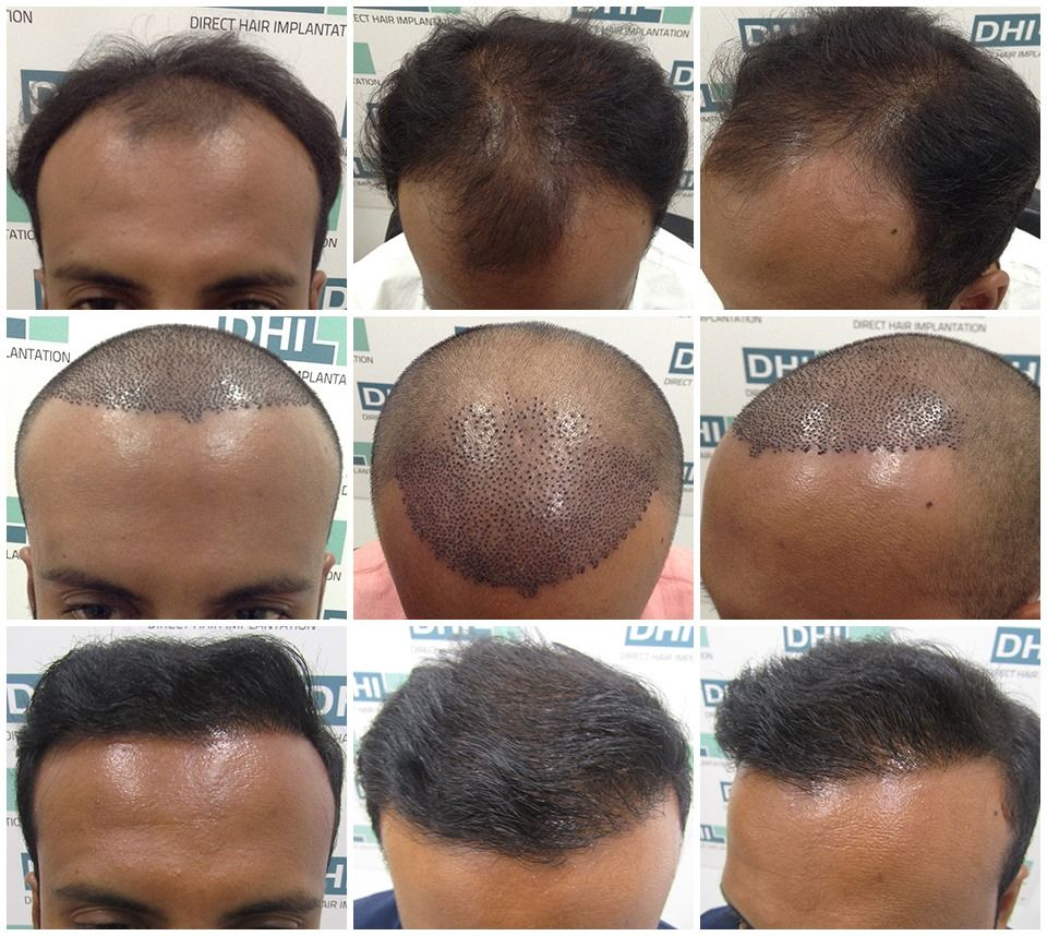 Consult the most trusted hair transplant surgeons in Delhi
