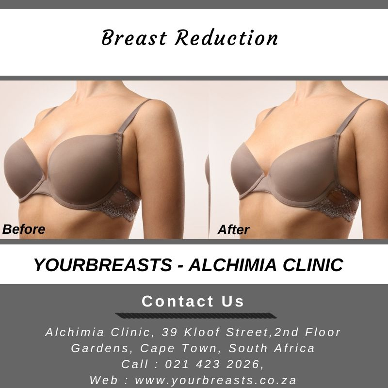 Best and affordable breast reduction surgery treatment in Cape Town