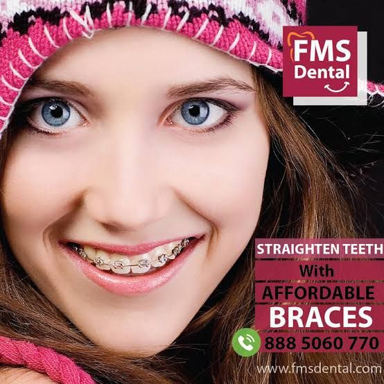 Best Dentist in Kochi | Best Dentist in Cochin - FMS Dental