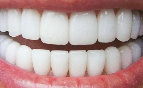 Porcelain Veneers Teeth