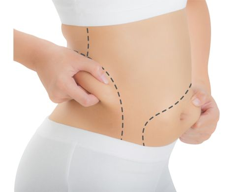 Coolsculpting Treatment for Fat Reduction in Hyderabad | Fat Freezing